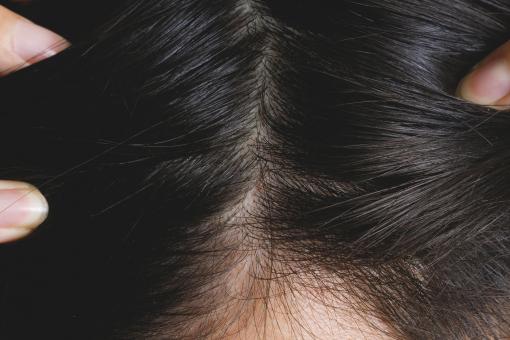 分け目 薄毛 【女性の薄毛】分け目パックリはげを改善!目立たなくする方法|JGS