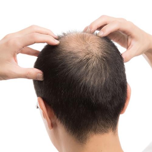 薄毛 頭頂部
