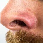 【男性】鼻毛カッターのおすすめ人気商品。使い方やお手入れ方法