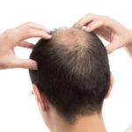 O字ハゲの改善方法や育毛剤、おすすめの髪型について